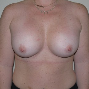 After Photo - Breast Augmentation - Case #9264 - Sub muscular Breast Augmentation - Frontal View