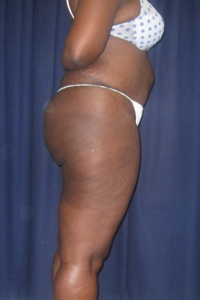 Before Photo - Buttock Lift - Case #9271 - Brazilian Buttock Lift - Lateral View
