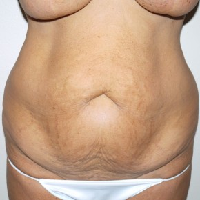 Before Photo - Tummy Tuck - Case #9304 - 57 year old after tummy tuck - Frontal View