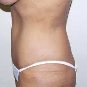After Photo - Tummy Tuck - Case #9304 - 57 year old after tummy tuck - Lateral View