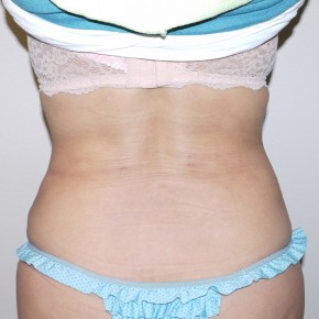 After Photo - Liposuction - Case #9311 - Ultrasonic liposuction back - Frontal View