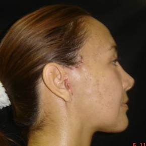 After Photo - Facelift - Case #9350 - Macslift Minimal Access Cranial Suspension Lift for midface and neck - Oblique View