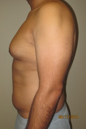 Before Photo - Liposuction - Case #10031 - 37 Male Liposuction - Lateral View