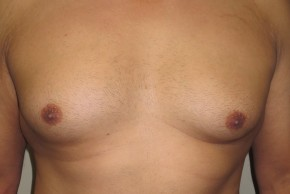 Before Photo - Gynecomastia - Case #10032 - 37 Male Gynecomastia - Frontal View