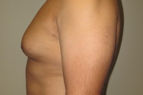 Before Photo - Gynecomastia - Case #10032 - 37 Male Gynecomastia - Lateral View