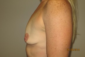 Before Photo - Breast Augmentation - Case #10034 - 40 Female Breast Augmentation - Lateral View