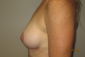 After Photo - Breast Augmentation - Case #10034 - 40 Female Breast Augmentation - Lateral View