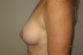 After Photo - Breast Lift - Case #10035 - 40 Female Breast Lift - Lateral View