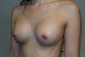 After Photo - Breast Augmentation - Case #10036 - 33 Female Breast Augmentation - Oblique View