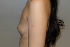 Before Photo - Breast Augmentation - Case #10036 - 33 Female Breast Augmentation - Lateral View