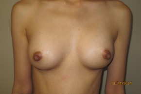 After Photo - Breast Augmentation - Case #10038 - 25 Female Breast Augmentation - Frontal View