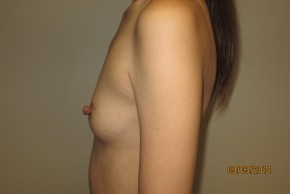 Before Photo - Breast Augmentation - Case #10038 - 25 Female Breast Augmentation - Lateral View