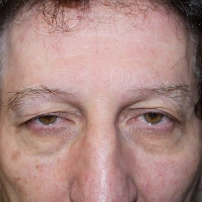 Before Photo - Eyelid Surgery - Case #10057 - Blepharoplasty - Frontal View