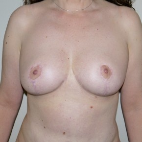 After Photo - Breast Reduction - Case #10061 - 48 year old after Breast Reduction - Frontal View