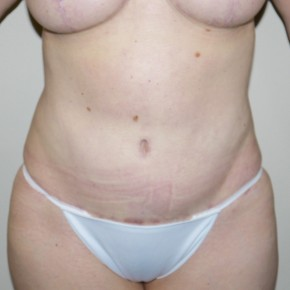 After Photo - Tummy Tuck - Case #10062 - 48 year old with a history of abdominal contour problem after abdominal liposuction - Frontal View
