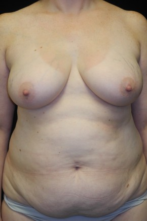 Before Photo - Breast Reconstruction - Case #10614 - 36 y/o - Immediate Bilateral DIEP Breast Flap Reconstruction - Frontal View