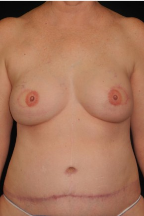 After Photo - Breast Reconstruction - Case #10617 - 55 y/o - Immediate Bilateral DIEP Breast Flap Reconstruction - Frontal View