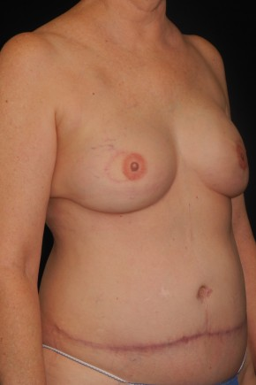After Photo - Breast Reconstruction - Case #10617 - 55 y/o - Immediate Bilateral DIEP Breast Flap Reconstruction - Oblique View