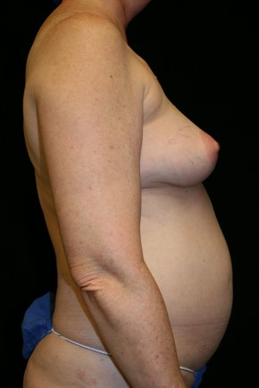 Before Photo - Breast Reconstruction - Case #10617 - 55 y/o - Immediate Bilateral DIEP Breast Flap Reconstruction - Lateral View