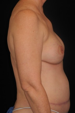 After Photo - Breast Reconstruction - Case #10617 - 55 y/o - Immediate Bilateral DIEP Breast Flap Reconstruction - Lateral View