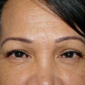 After Photo - Eyelid Surgery - Case #10630 - Upper Blepharoplasty - Frontal View