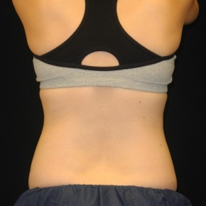 After Photo - Nonsurgical Fat Reduction - Case #10635 - 27 y/o female - CoolSculpting - Posterior View