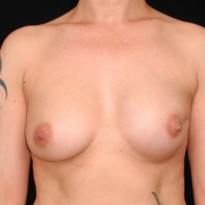 After Photo - Breast Reconstruction - Case #10645 - 41 y/o - Delayed Unilateral Tissue Expander/Silicone Implant Breast Reconstruction - Frontal View