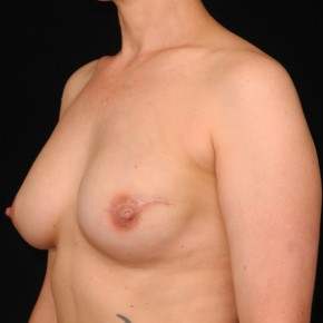 After Photo - Breast Reconstruction - Case #10645 - 41 y/o - Delayed Unilateral Tissue Expander/Silicone Implant Breast Reconstruction - Oblique View