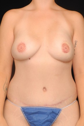 After Photo - Breast Reconstruction - Case #10662 - 29 y/o - Immediate Bilateral DIEP Breast Flap Reconstruction (BRCA+, Prophylactic Mastectomies)  - Frontal View