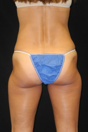 Before Photo - Nonsurgical Fat Reduction - Case #10663 - 41 y/o female - CoolSculpting - Posterior View