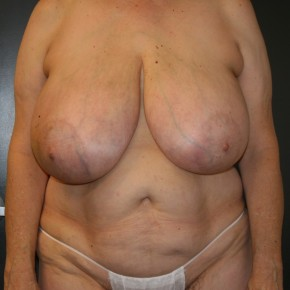 Before Photo - Breast Reconstruction - Case #10724 - 57 y/o - Immediate Bilateral DIEP Flap Breast Reconstruction - Frontal View