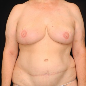 After Photo - Breast Reconstruction - Case #10724 - 57 y/o - Immediate Bilateral DIEP Flap Breast Reconstruction - Frontal View