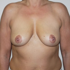 Before Photo - Breast Lift - Case #10743 - Breast Augmentation with Mastopexy - Frontal View