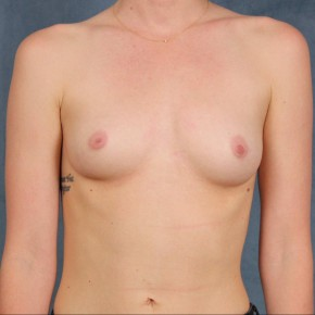 Before Photo - Breast Augmentation - Case #10813 - dual-plane subpectoral breast augmentation with silicone gel breast implants - Frontal View