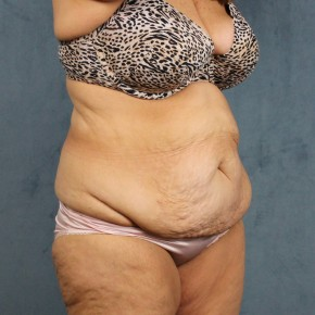 Before Photo - Tummy Tuck - Case #10814 - extended abdominoplasty (tummy tuck) after massive weight loss - Oblique View