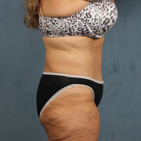 After Photo - Tummy Tuck - Case #10814 - extended abdominoplasty (tummy tuck) after massive weight loss - Lateral View