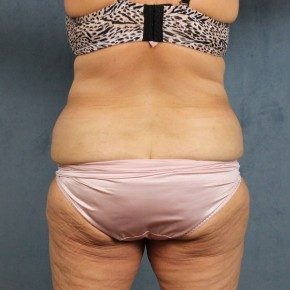 Before Photo - Tummy Tuck - Case #10814 - extended abdominoplasty (tummy tuck) after massive weight loss - Posterior Oblique View