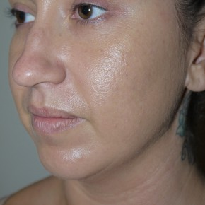 Before Photo - Liposuction - Case #10825 - Liposuction of the chin and neck - Oblique View