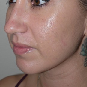 After Photo - Liposuction - Case #10825 - Liposuction of the chin and neck - Oblique View