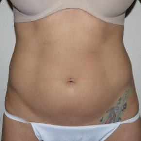 Before Photo - Liposuction - Case #10826 - Liposuction of the abdomen and hips - Frontal View