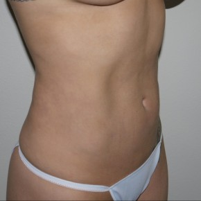 After Photo - Liposuction - Case #10826 - Liposuction of the abdomen and hips - Oblique View