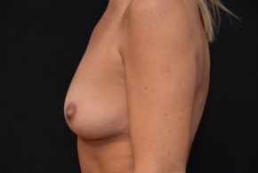 Before Photo - Breast Augmentation - Case #10859 - Oblique View