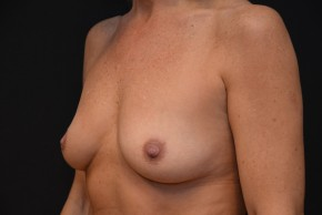 Before Photo - Breast Augmentation - Case #10859 - Lateral View