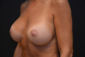 After Photo - Breast Augmentation - Case #10859 - Lateral View