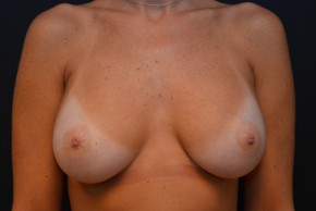 After Photo - Breast Augmentation - Case #10860 - Frontal View