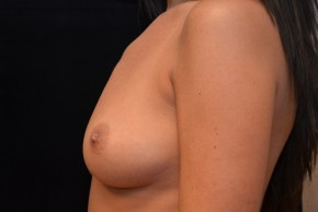 Before Photo - Breast Augmentation - Case #10860 - Oblique View