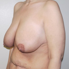 Before Photo - Breast Lift - Case #10858 - Full Mastopexy - Oblique View