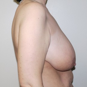 Before Photo - Breast Lift - Case #10858 - Full Mastopexy - Lateral View