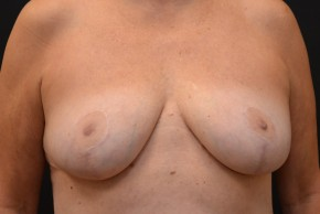After Photo - Breast Reduction - Case #10980 - Frontal View