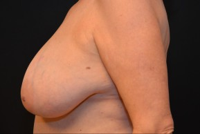 Before Photo - Breast Reduction - Case #10980 - Lateral View